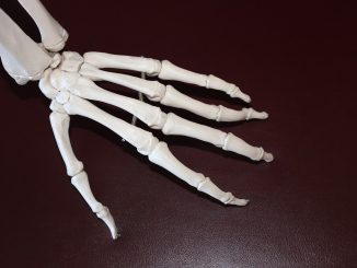 Movement Products With Regard To Osteoarthritis Patients